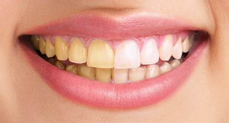 Fix teeth in Photoshop and Lightroom